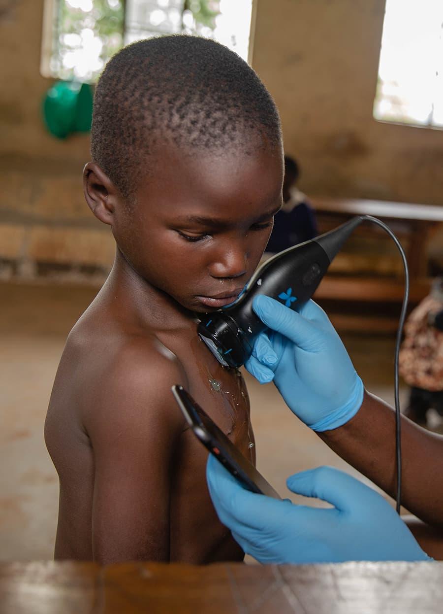 Un enfant examiné à l'aide du Butterfly iQ